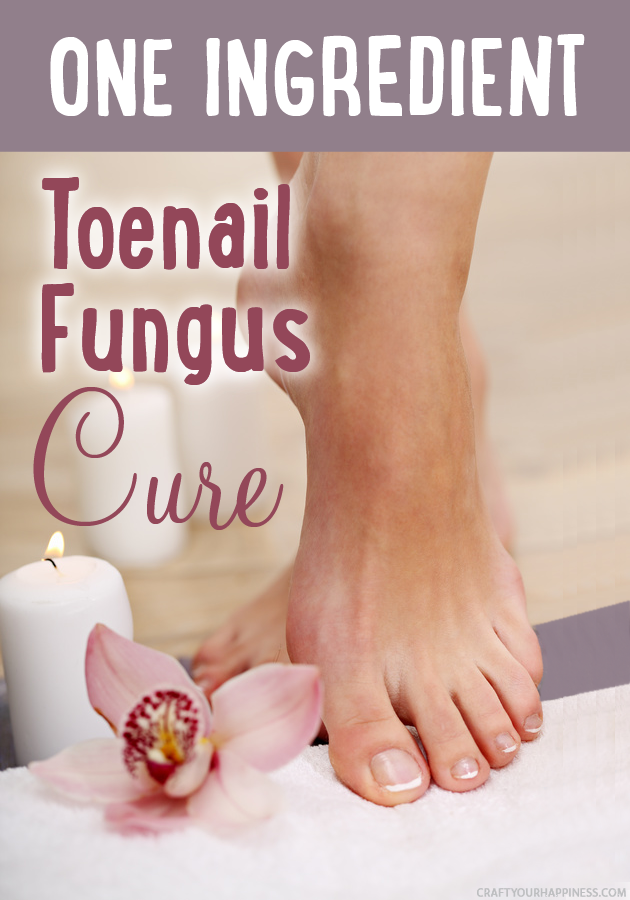 Get rid of icky toenail fungus with our one ingredient toenail fungus cure! We've got a bonus free sachet pattern you can make to keep your shoes fresh.